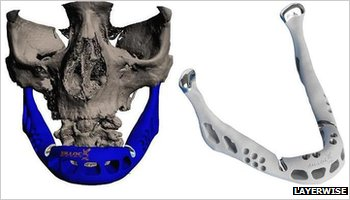 3D Printed jaw bone